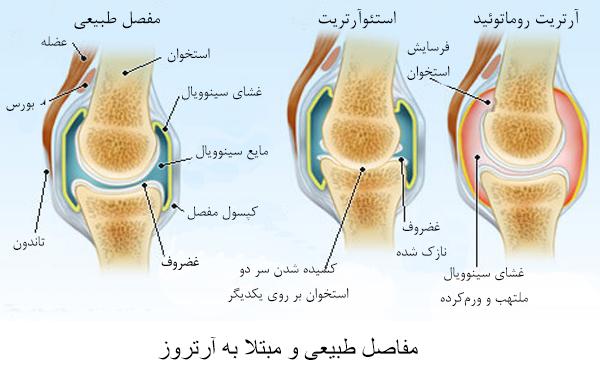 نتیجه تصویری برای علائم آرتریت روماتوئید آرتریت روماتوئید