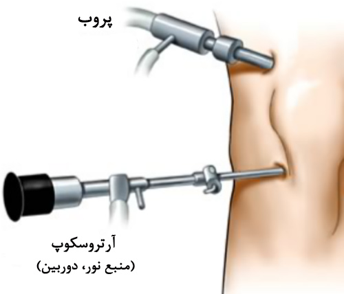 Arthroscopic-Knee-Surgery