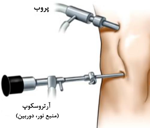 Arthroscopic-Knee-Surgery