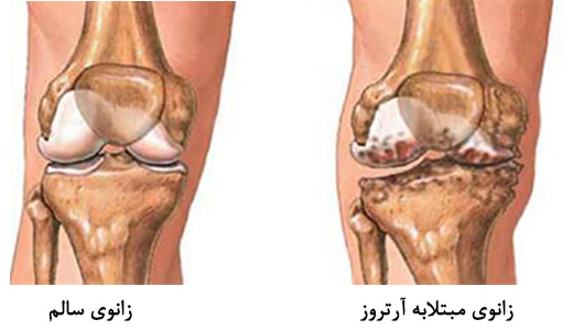 نتیجه تصویری برای بیماریهای آرتروز